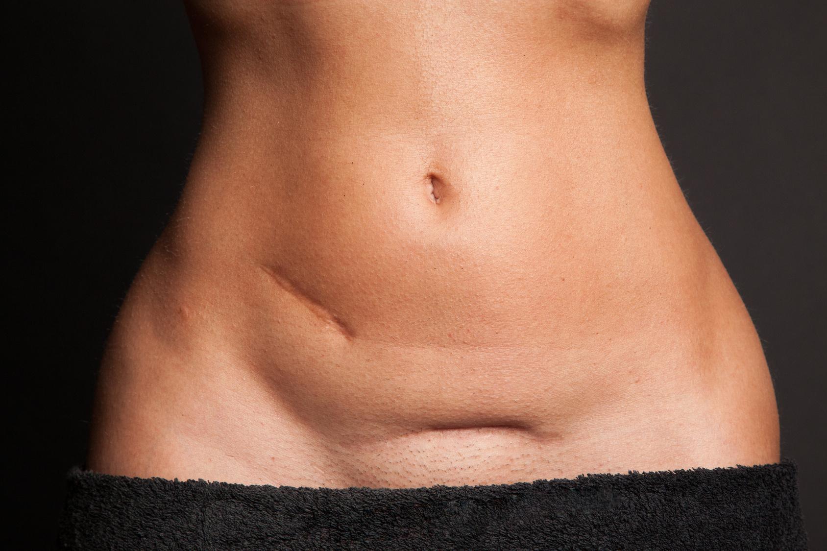 Kaiserschnitt Schwellung über Narbe